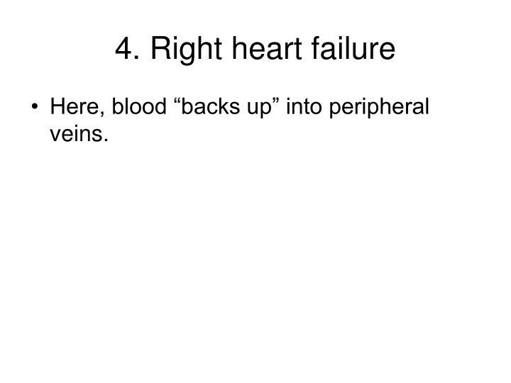 4. Right heart failure