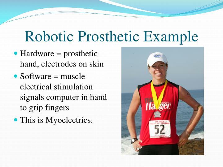 Robotic Prosthetic Example