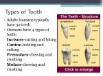 types of tooth