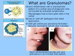 what are granulomas