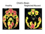 child s brain healthy neglected abused