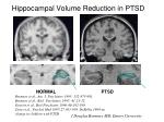 hippocampal volume reduction in ptsd