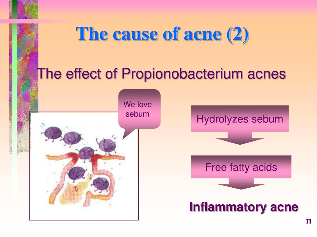 The cause of acne (2)