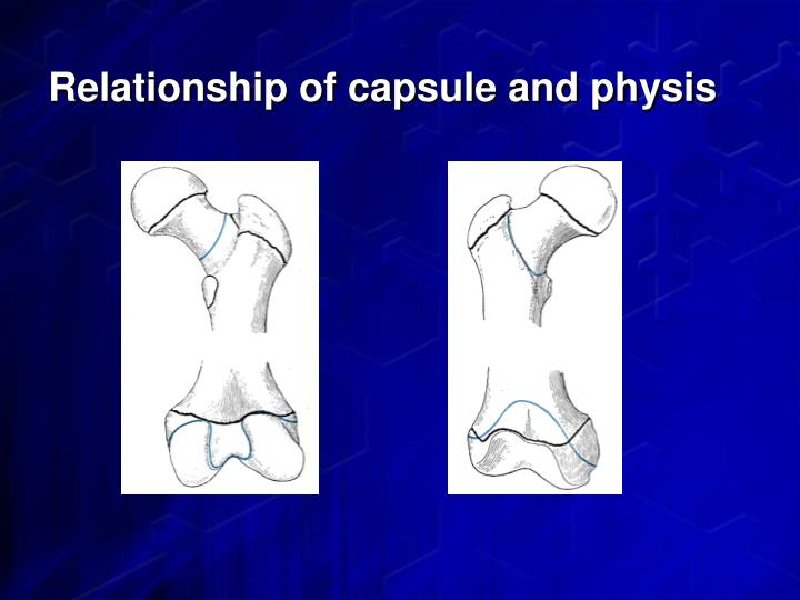 Relationship of capsule and physis