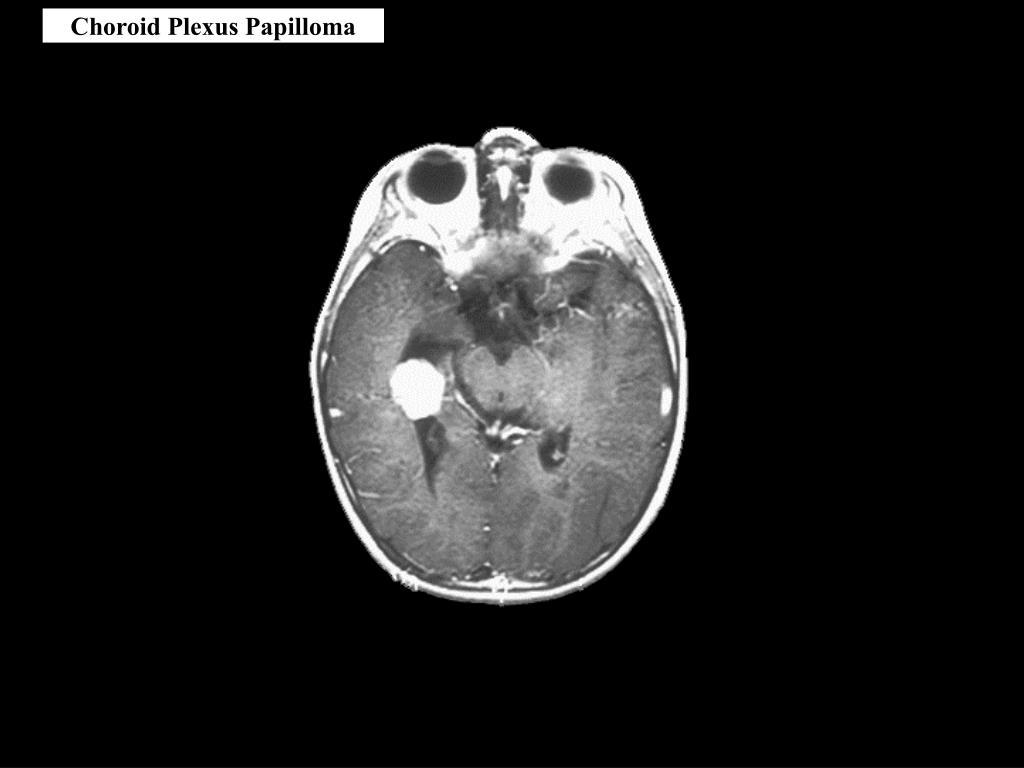 Plexus choroideus – Wikipédia