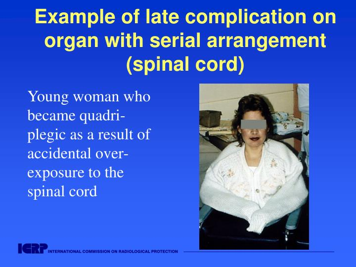 Example of late complication on organ with serial arrangement (spinal cord)