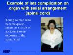 example of late complication on organ with serial arrangement spinal cord