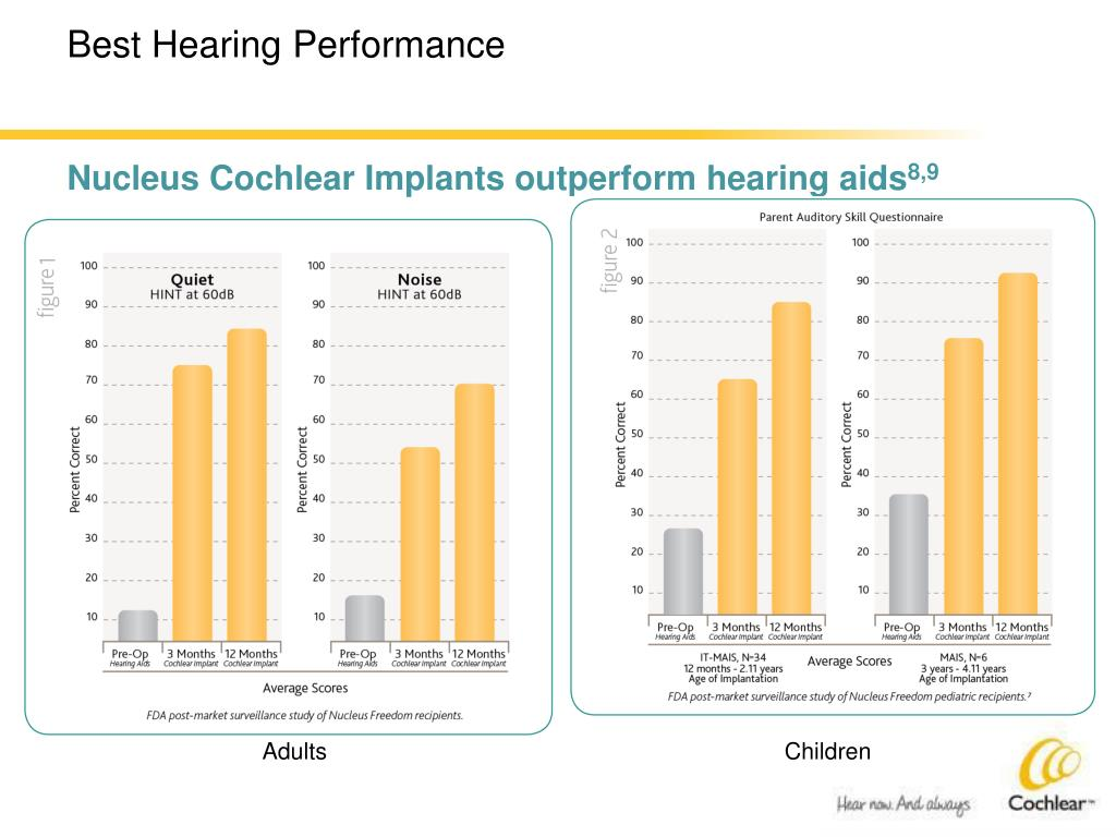 Nucleus Cochlear Implants outperform hearing aids