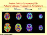 positron emission tomography pet alzheimer s disease progression vs normal brains