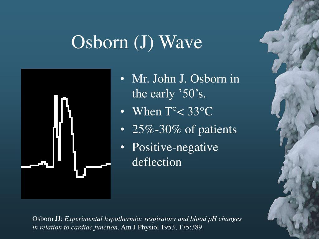 Osborn (J) Wave