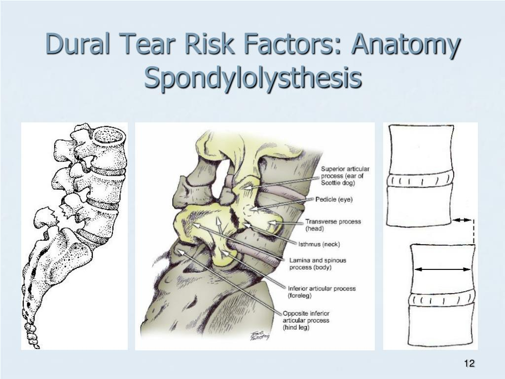 Dural Tear Risk Factors: Anatomy