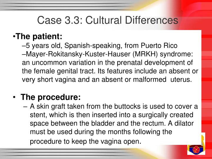 Case 3.3: Cultural Differences