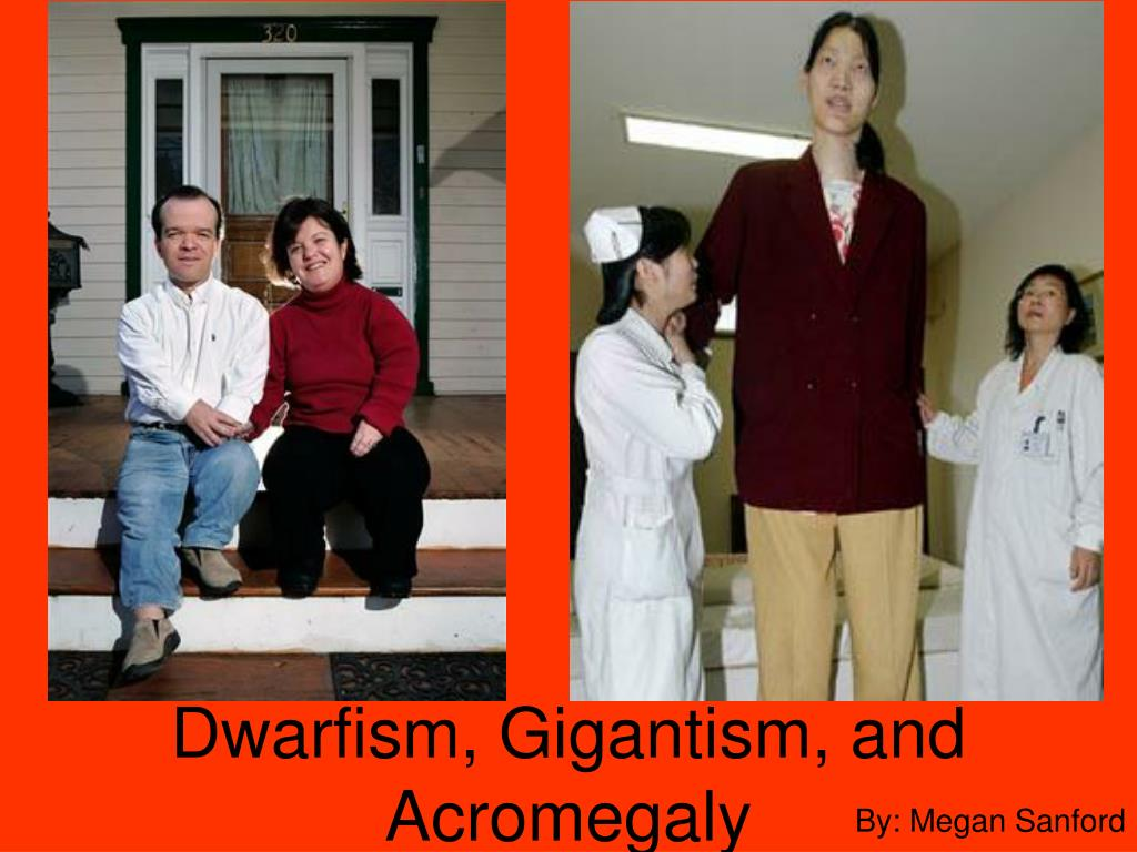 PPT - Dwarfism, Gigantism, and Acromegaly PowerPoint ...
