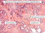 normal prostate parenchyma low magnification