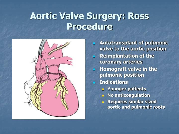 Ppt Valvular Heart Disease Powerpoint Presentation Id