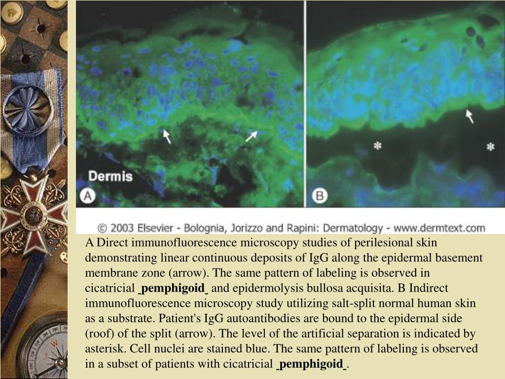 A Direct immunofluorescence microscopy studies of perilesional skin demonstrating linear continuous deposits of IgG along the epidermal basement membrane zone (arrow). The same pattern of labeling is observed in cicatricial