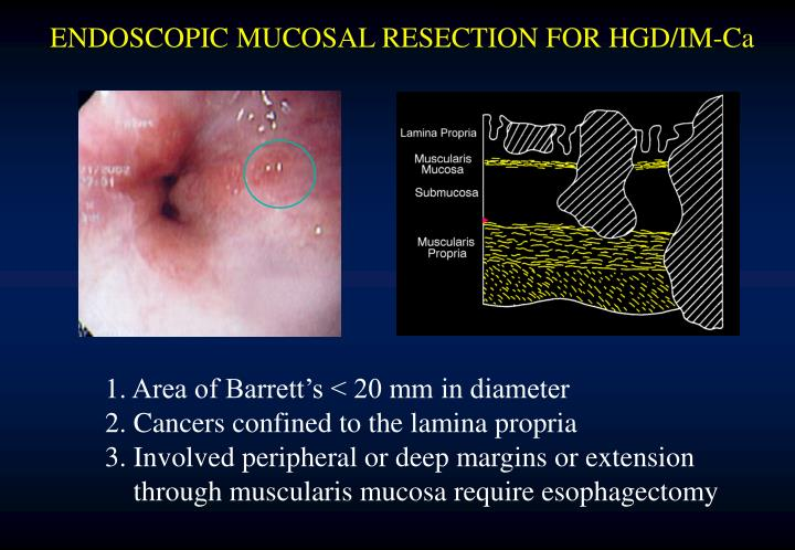 ENDOSCOPIC MUCOSAL RESECTION FOR HGD/IM-Ca