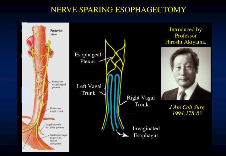 NERVE SPARING ESOPHAGECTOMY