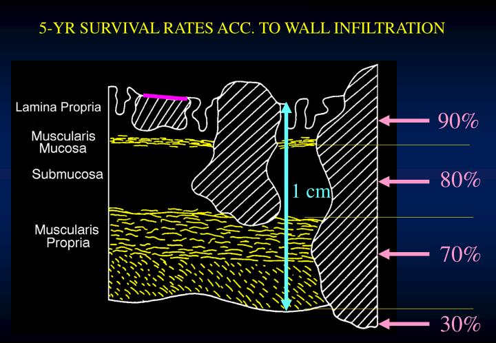 5-YR SURVIVAL RATES ACC. TO WALL INFILTRATION
