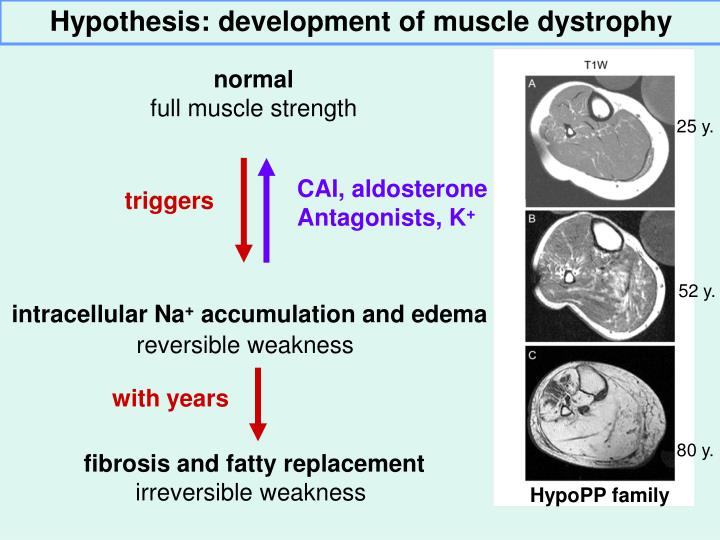 Hypothesis: development of muscle dystrophy