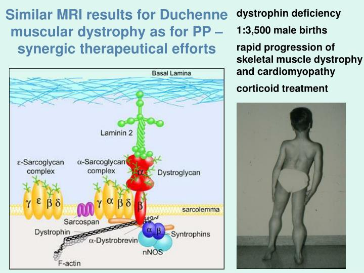 Similar MRI results for Duchenne muscular dystrophy as for PP – synergic therapeutical efforts