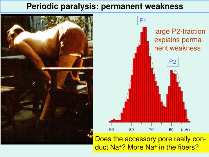 Periodic paralysis: p