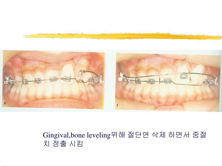 Gingival,bone leveling