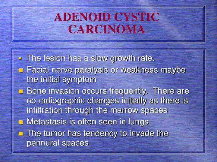 ADENOID CYSTIC CARCINOMA