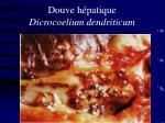 douve h patique dicrocoelium dendriticum