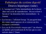 pathologies du syst me digestif douves h patiques suite