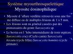 syst me myoarthrosquelettique myosite osinophilique