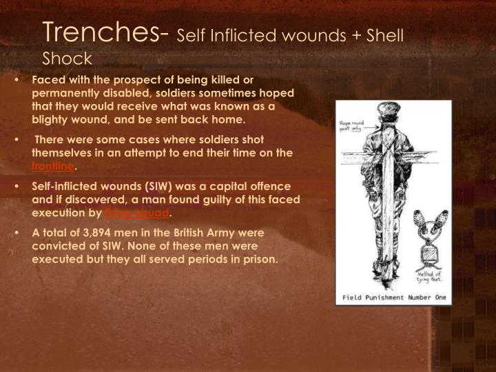 Trenches-