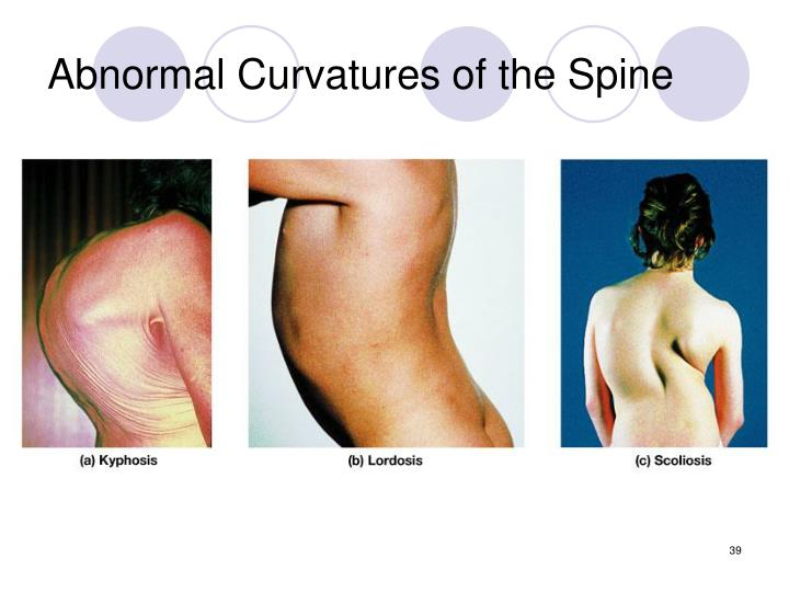 Abnormal Curvatures of the Spine
