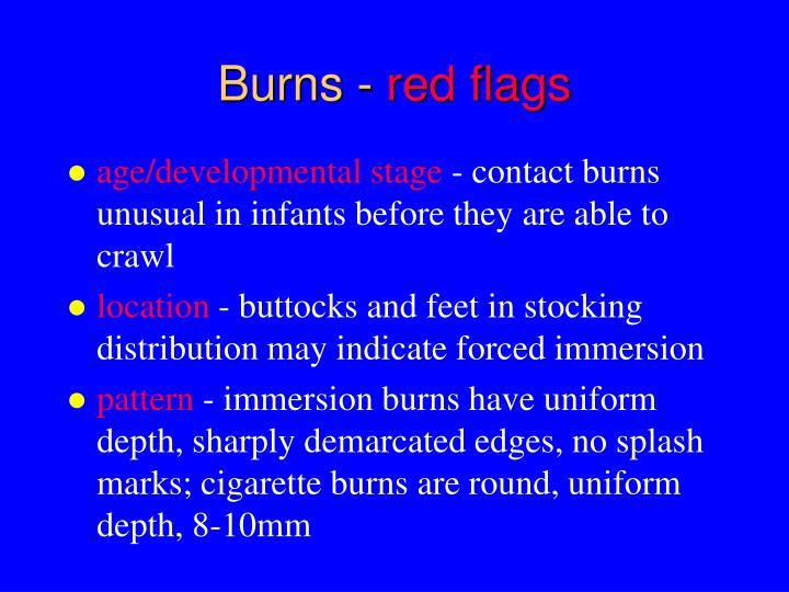 Burns -