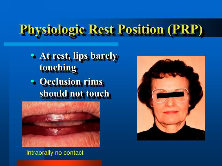 Physiologic Rest Position (PRP)