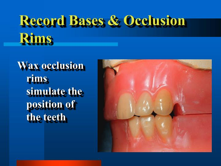 Record bases occlusion rims1
