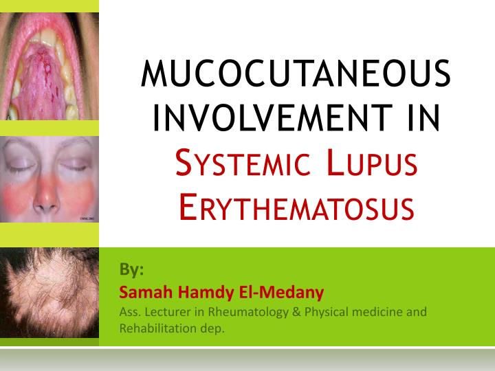 mucocutaneous involvement in systemic lupus erythematosus n.