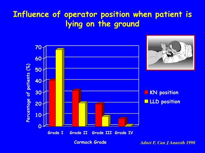 Influence of operator position when patient is lying on the ground