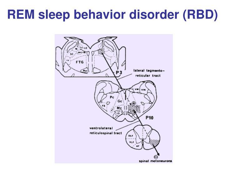 REM sleep behavior disorder (RBD)