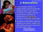 2 anencefalia