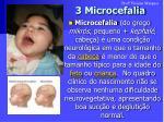 3 microcefalia