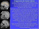 4 agenesia do corpo caloso