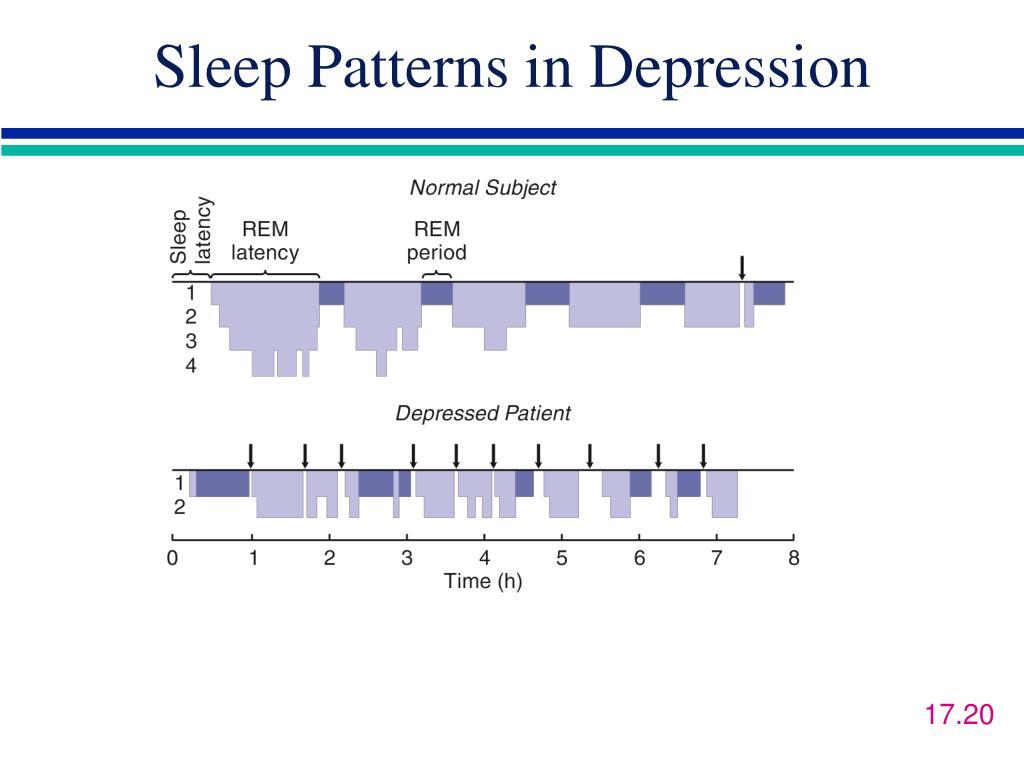 Sleep Patterns in Depression