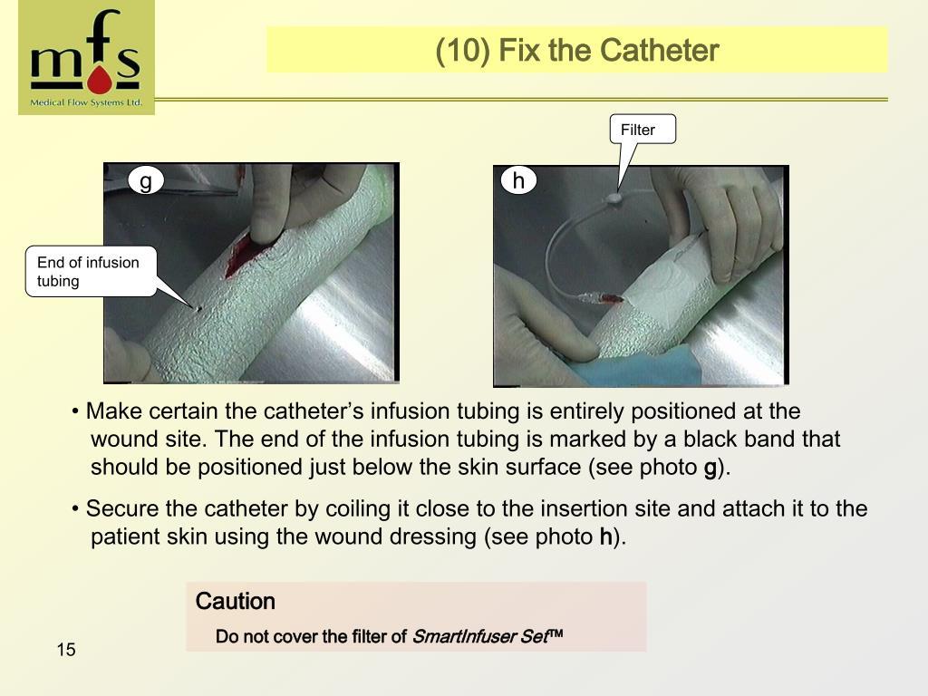 (10) Fix the Catheter