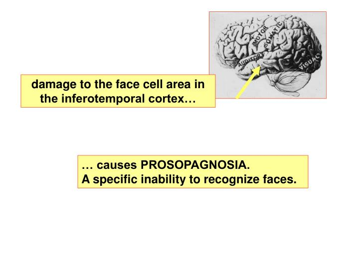 damage to the face cell area in the inferotemporal cortex…