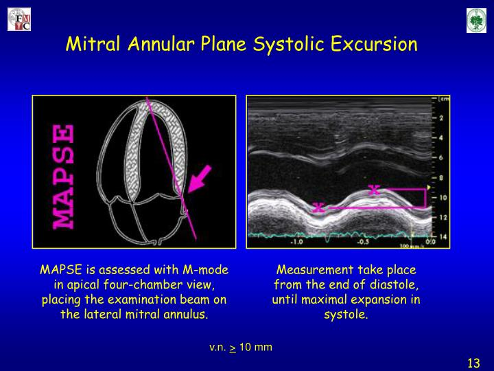 Mitral Annular Plane Systolic Excursion