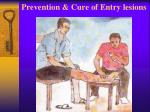 prevention cure of entry lesions