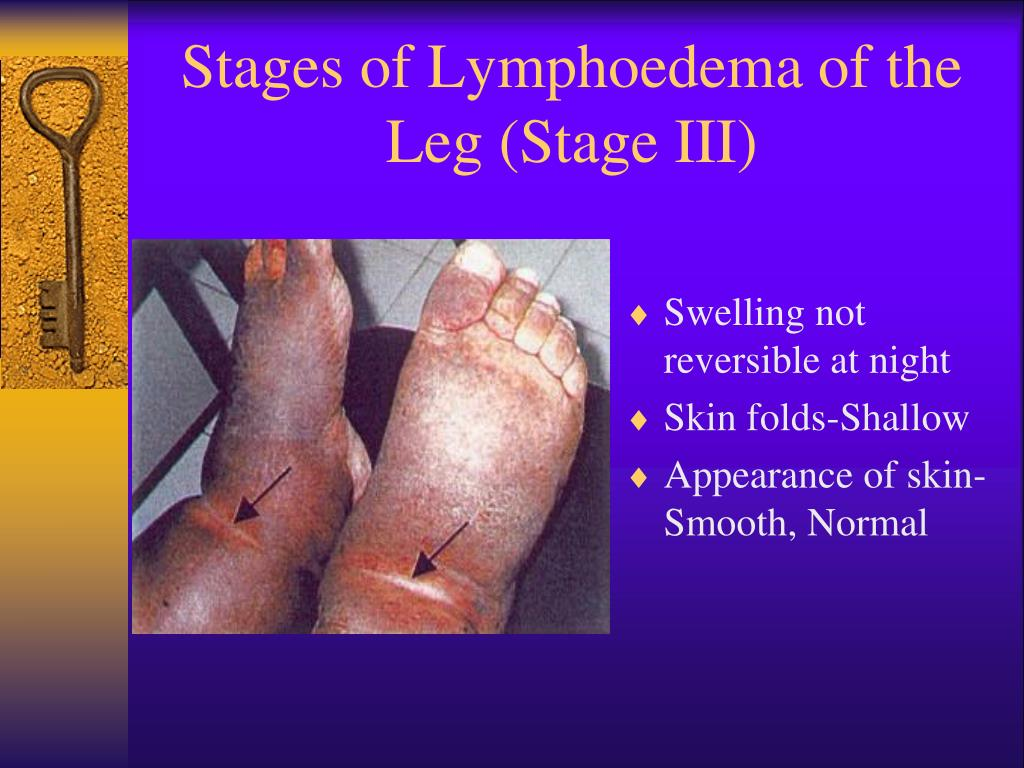 Stages of Lymphoedema of the Leg (Stage III)