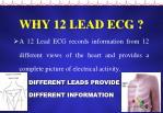 why 12 lead ecg