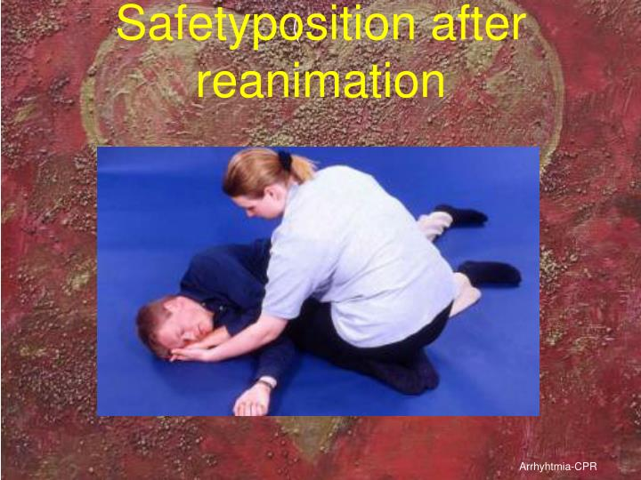 Safetyposition after reanimation